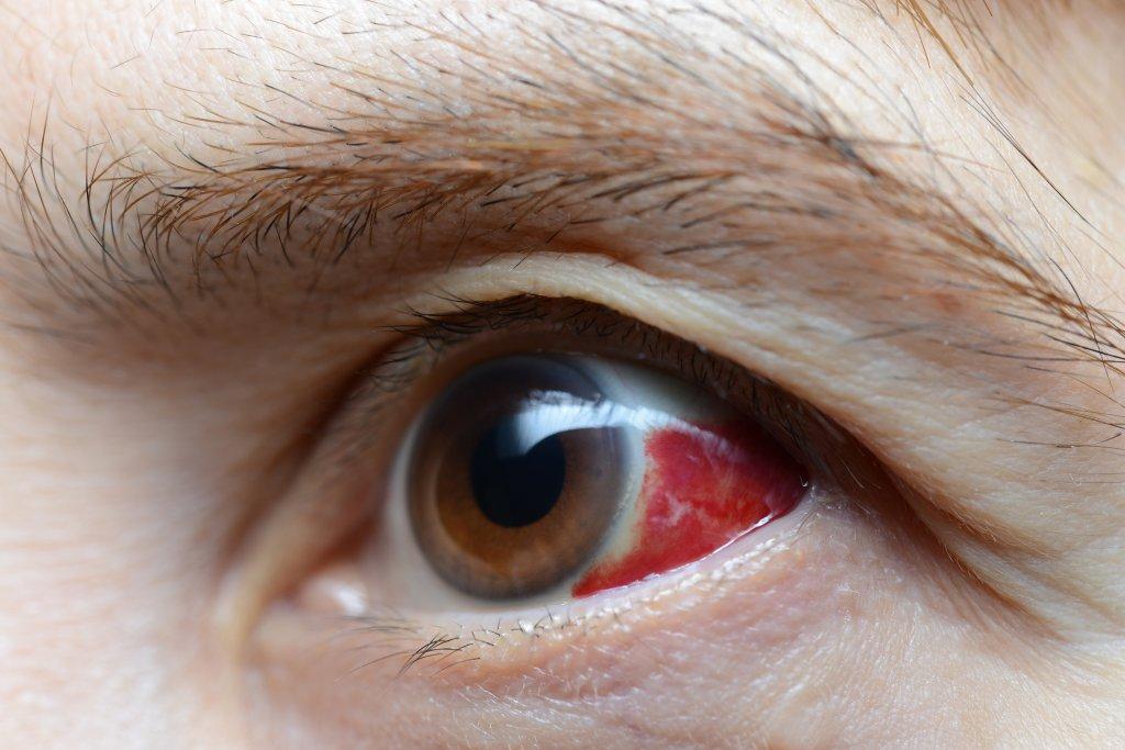 kırmızı göz akına yakın çekim