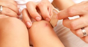 yara izi doğal tedavisi